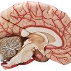 Tamaño promedio de un cerebro normal y tamaño de un cerebro con Alzheimer