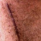 ¿Qué puedo hacer para aplanar una cicatriz queloide?
