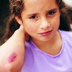 Cómo curar una infección en una herida cerrada