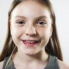 Cómo tratar las espinillas en los niños