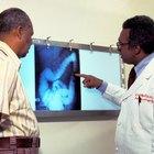Tratamiento para el colon sigmoide engrosado