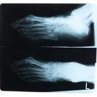 Las causas de un tobillo hinchado sin dolor