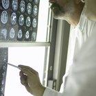 Convulsiones provocadas por un tumor en el lóbulo frontal