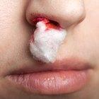 Causas de las hemorragias nasales nocturnas