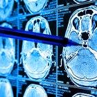 Diferencias entre un neurocirujano y un neurólogo
