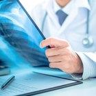 ¿Cuáles son los riesgos de los rayos X?