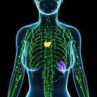 ¿Cuáles son las causas del cáncer de los ganglios linfáticos?