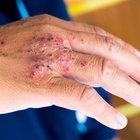 Los antibióticos recomendados para las heridas infectadas