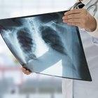 ¿Cuál es el tratamiento para un pulmón perforado?