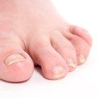 ¿Qué significan las rugosidades en las uñas de los pies?