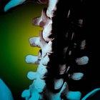 Los síntomas de estenosis espinal en C6 y C7