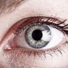 Un grano con inflamación alrededor de los ojos