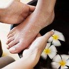 Cómo prevenir pies y manos transpirados