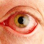 Las causas de la decoloración del ojo