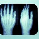 Ejercicios de fisioterapia para una mano fracturada