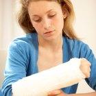¿Qué pasa con la fibra del músculo del brazo después de estar en un yeso?
