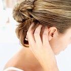 Síntomas de herpes en la cabeza