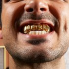 How to Recover Dental Gold