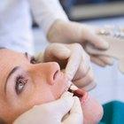 Tipos de cemento para coronas dentales