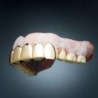 Cómo quitar las manchas de las prótesis dentales