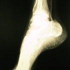 Ejercicios en casa para fortalecer un tobillo roto