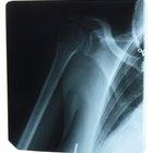 Rehabilitación de brazo y hombro después de una fractura de húmero