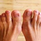 Cómo quitar el pellejo a un dedo del pie