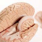 Actividad cerebral anormal en el lóbulo temporal izquierdo