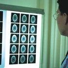 Contraindicaciones de las terapias por ultrasonido