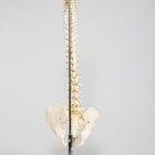 Ejercicios para la espalda después de una fractura de compresión T12