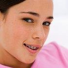 Las seis fases de la ortodoncia