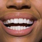Formas de regenerar el tejido de las encías
