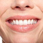 How to Qualify for Free Dental Treatments