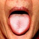 Cómo deshacerte de los granos blancos en la lengua