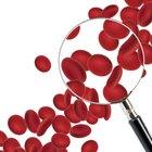 ¿Cuáles son las causas de un recuento elevado de plaquetas?