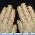 About Yellow Fingernails