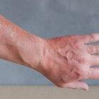 Oatmeal Paste for Sunburned Skin