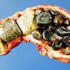 How are gallstones passed?