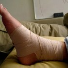How long does a sprained ankle take to heal?