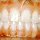 How to treat gum disease with vinegar