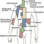 Symptoms of lymph node cancer