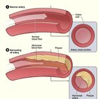Blocked artery symptoms & blood vessels