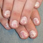 Diseases of the nails