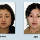 Jaw Reduction With Botox