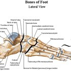 What are the symptoms of a foot stress fracture?