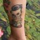 Tattoo removal regulations