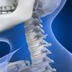 Natural Treatment for Arthritis in the Neck