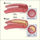 What does cholesterol do to the circulatory system?