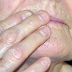 How to Cure Cold Sores Fast