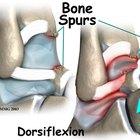 Osteophytosis treatment